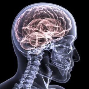 Auto Accident Head Injury Lawyer in Indy Indiana